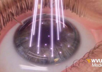 Wavelight LASIK Surgery